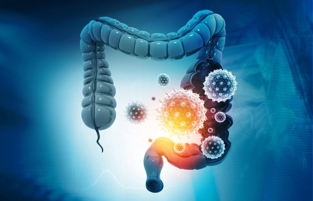 A picture of the colon/gut microbiome with potential bacteria