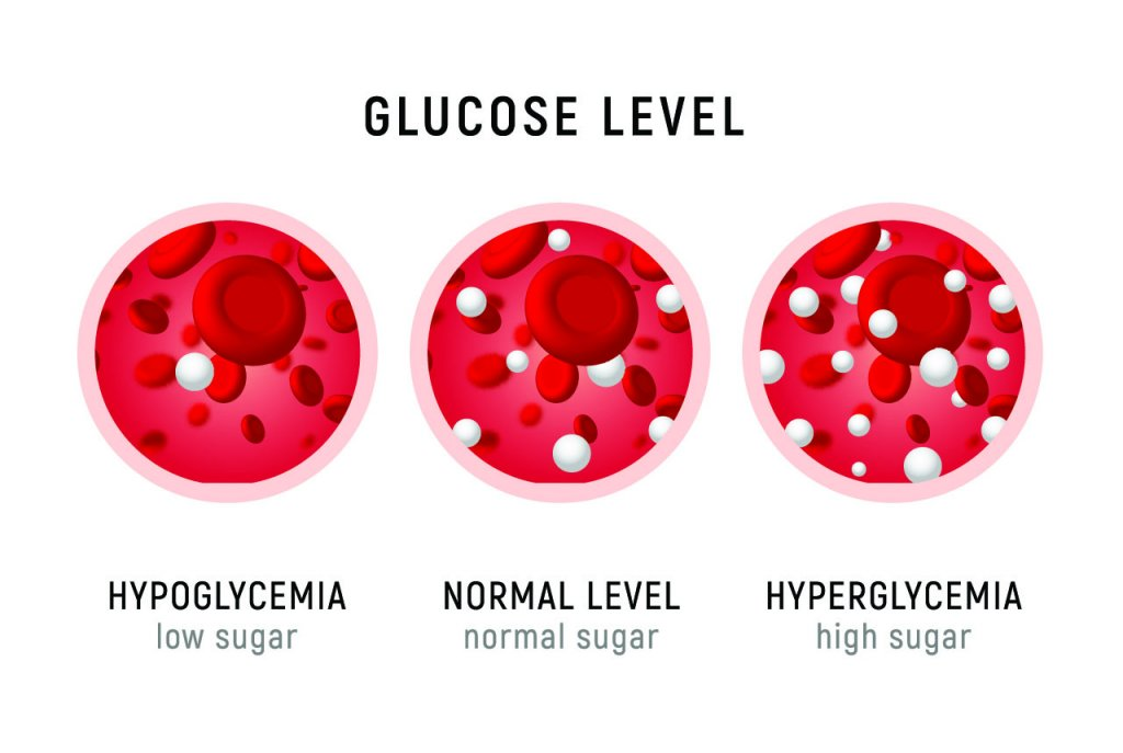 An image showing low, normal and high blood sugar
